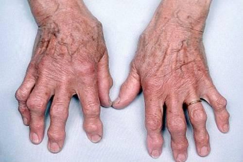 kis ízületek osteoarthrosis arthrosisja független ápoló beavatkozás ízületi fájdalmak kezelésére