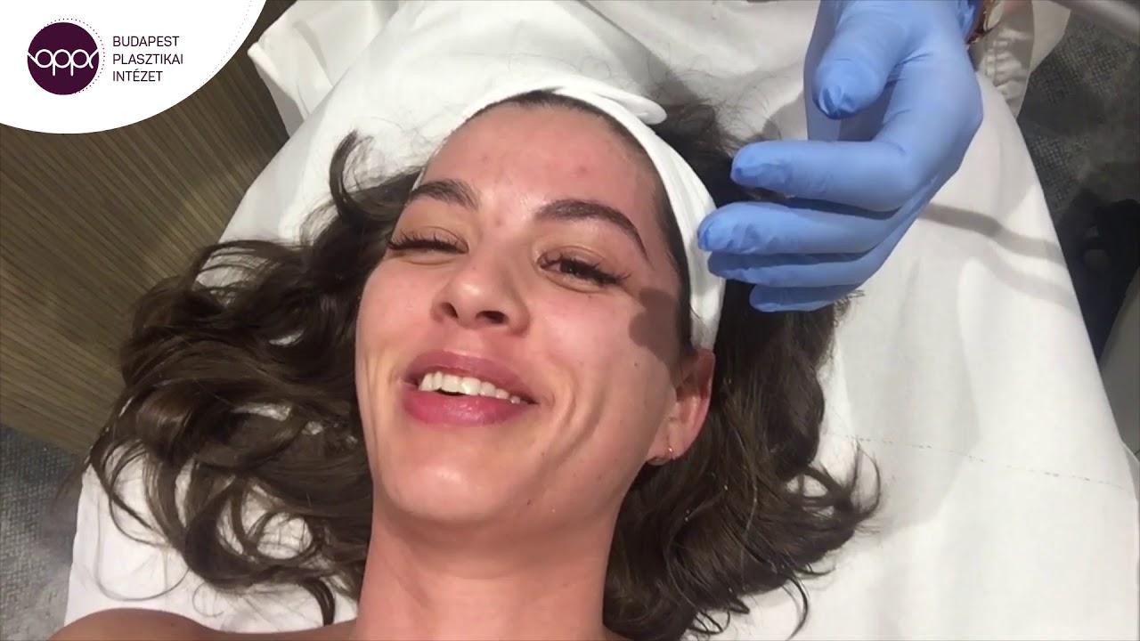 Kozmetikai kezelések árai