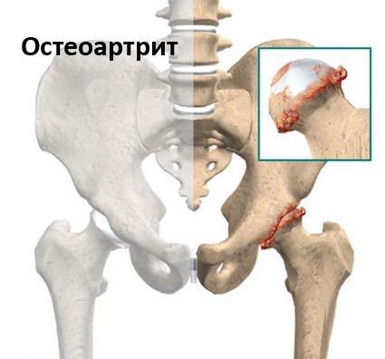 aki gyógyítja a csípőízületet artróziskezelő tabletták