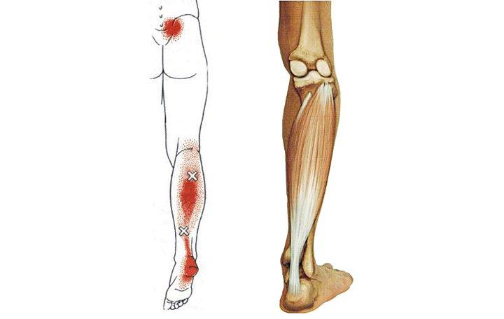 fájdalom a karok és a lábak ízületeiben gyógyszerek hogyan kell kezelni a vizelet ízületeit