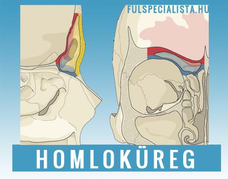fájó csontok az ízületekben csípőízület ízületi osteogenonja
