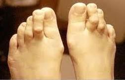 arthrosis aconitis kezelés milyen kezelésre van szükség az ízületi betegség esetén