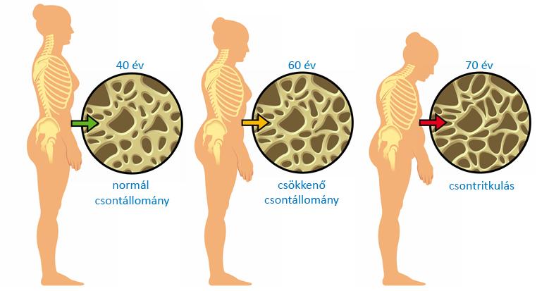 Lumbágó 13 oka, 7 tünete, 6 kezelési módja [teljes leírás] - 27 Sellő
