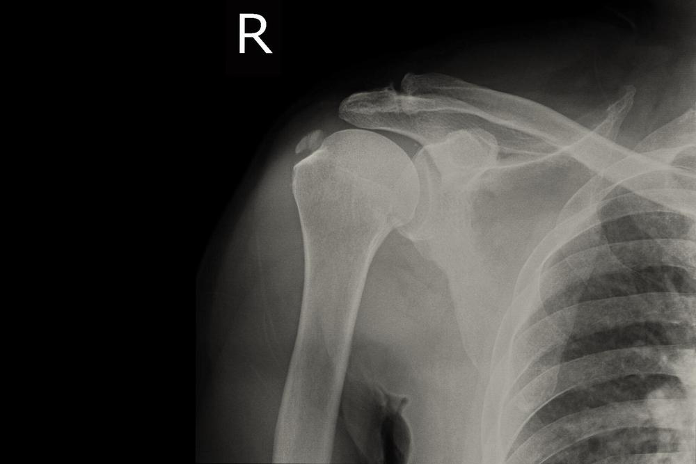 a vállízületek sérülések után fájnak az egyik láb csípőízületének fájdalmainak okai