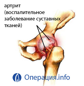 a jobb csípőízület artrózisa 3 fok