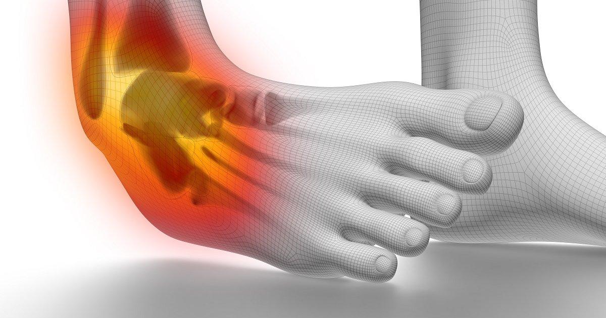 enyhíti a bokaízület súlyos fájdalmát