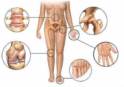 Dr. Diag - Kisízületi arthrosisok a kézen