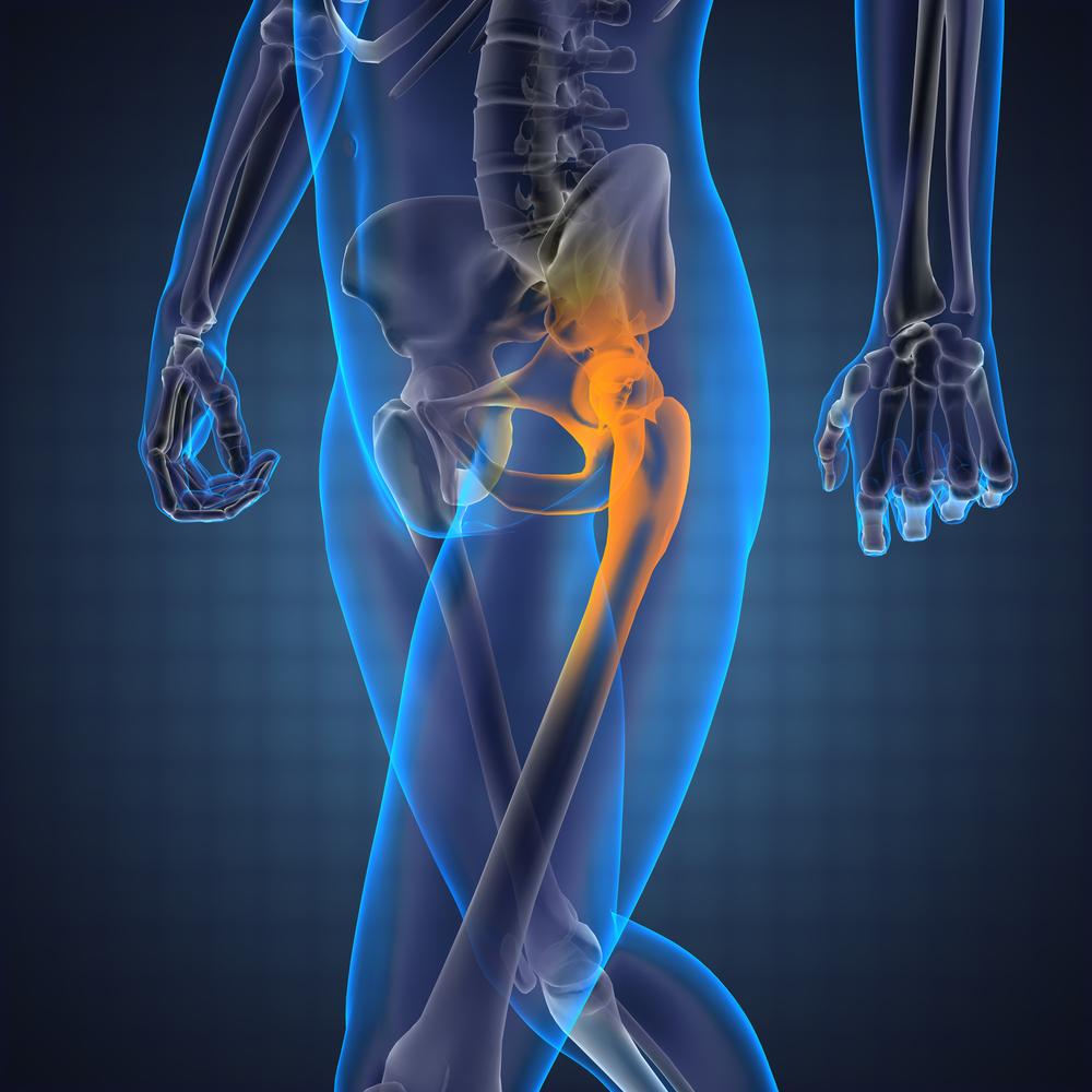 fájdalom a balízület csípőterületén gyógyszer csípőízületi gyulladás kezelésére
