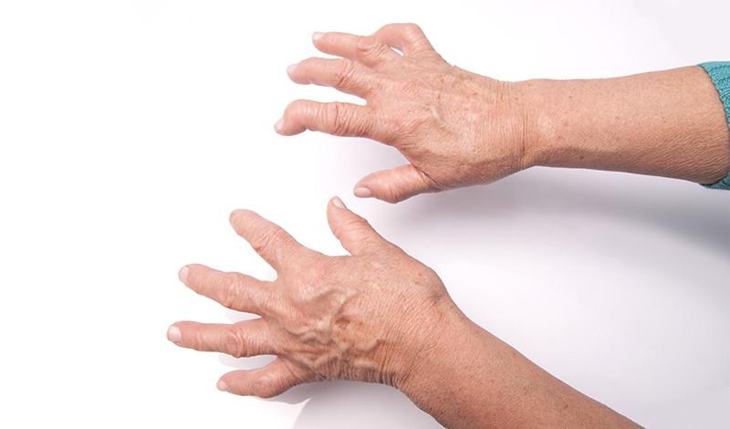 vállízület betegség és kezelés tinktúrák ízületi betegség esetén