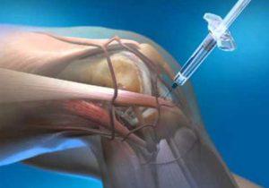 fáj a bal kéz középső ujján lévő ízület ízületi fájdalom és táplálkozás
