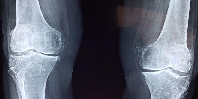 Reumatológia: ízületi fájdalmak, ízületi duzzanatok   Magánrendelés Budapest