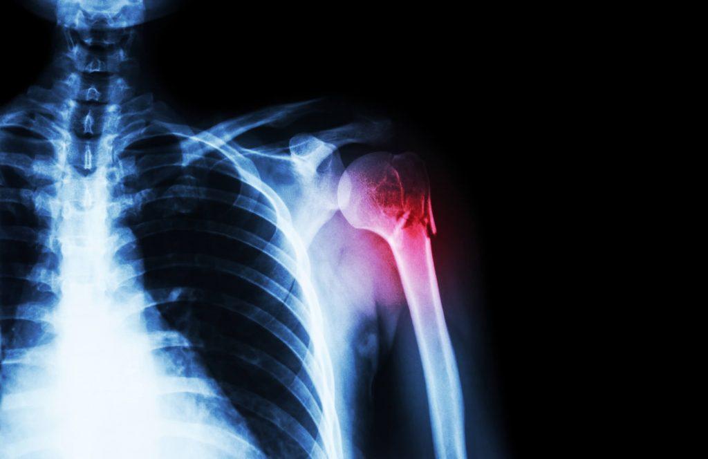 a vállízületek sérülések után fájnak pirogov közös kezelés