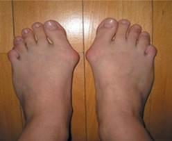 hogyan kezeljük a láb artrózisát 3 fokkal ízületi panaszok időjárás