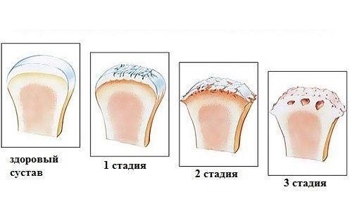 a csípőízület coxarthrosis deformálóinak kezelése ízületi fájdalom vállízület kezelése