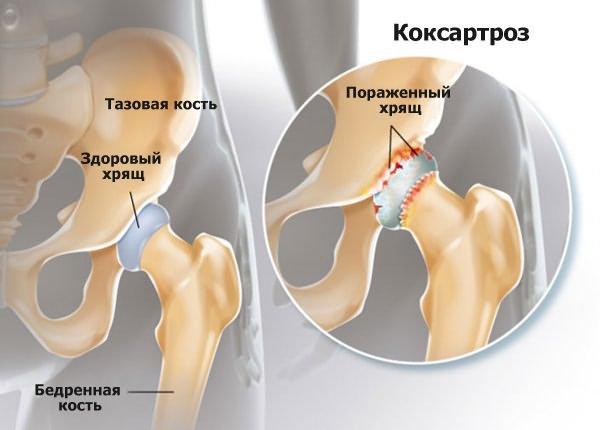 osteoarthritis agyagkezelés 5 fő ízületi probléma
