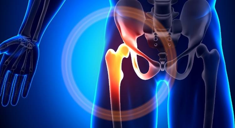 a csípőízületek nagyon fájnak ízületek ízületi gyulladásának kezelése vérplazma bevezetésével