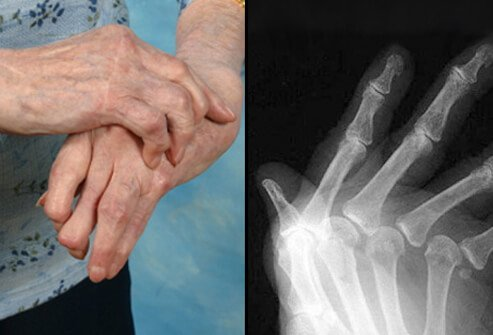 a fiatalkori rheumatoid arthritis kezelése