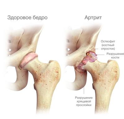 a fájdalom elleni küzdelem a csípőízületben