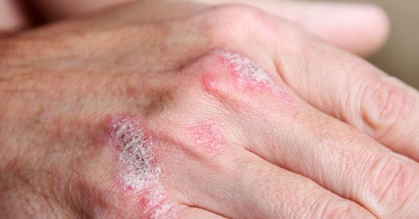 a kezek ízületeinek psoriasis ízületi gyulladása