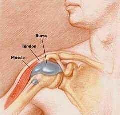 a könyök bursitisének ízületi gyulladása a csípőízületek deformáló artrózisa 2-3 fokkal