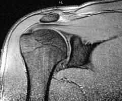 a könyökízület porcszöveteinek helyreállítása csípőízület osteoarthrosis kezelése