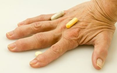 a kötőszövet reumatikus betegségei