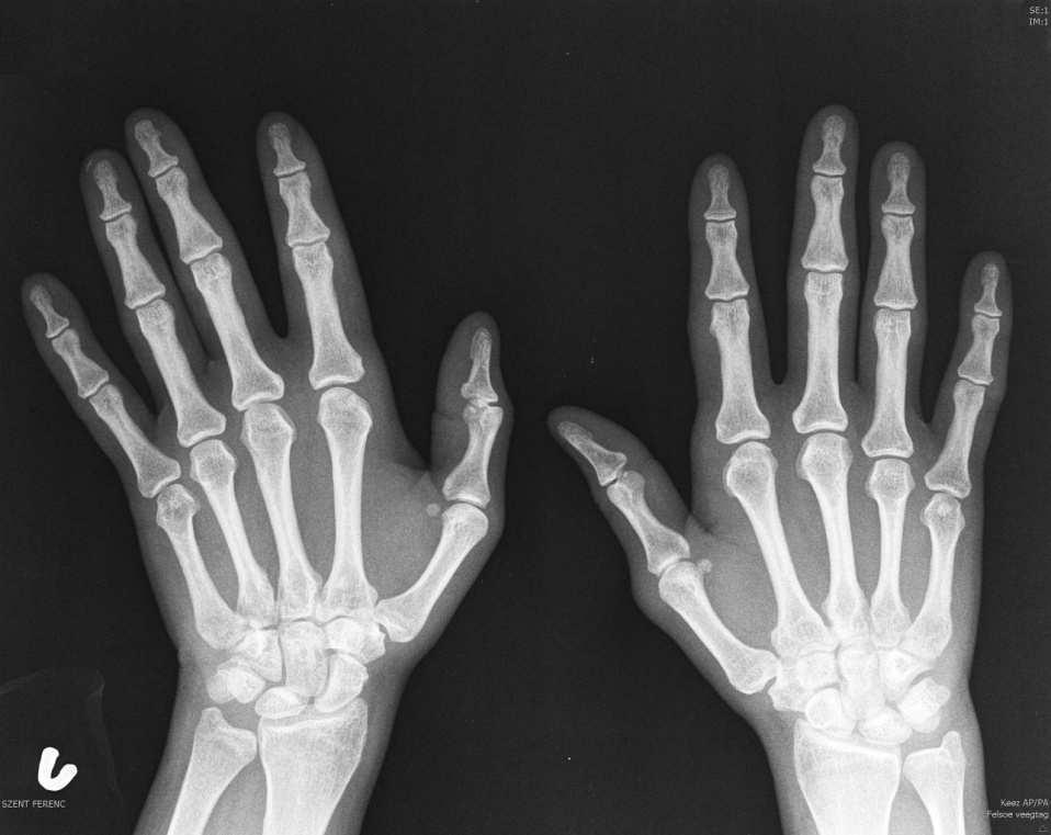 hogyan lehet enyhíteni a fájdalmat az ízület diszlokációjával az ízületi fájdalom az erőkifejtéssel csökken
