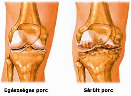 a láb ízületeinek gyulladása sérülés után