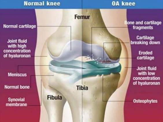 hogyan védjük meg az ízületeket a károsodástól chondrogard a vállízület artrózisában