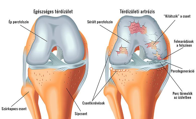 a térd artrózisának kezelésében ízületi gyulladás a kezek