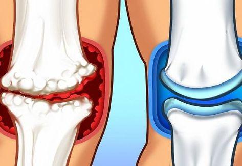 az ízületekből származó kenőcsök teljes neve gennyes artritisz a karon