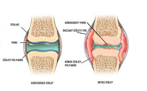 a térd artrózisának kezelése plazmolifting alkalmazásával