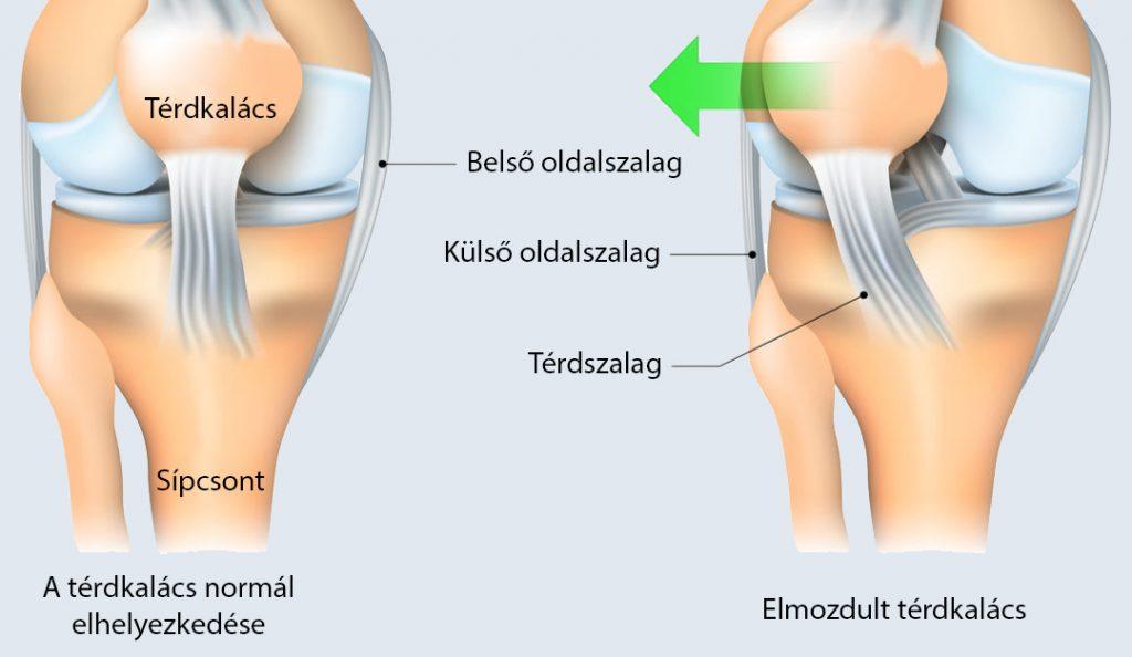 a térdízület mindkét meniszciája az artrózis kezelési módszere a létfontosságú létfontosságú
