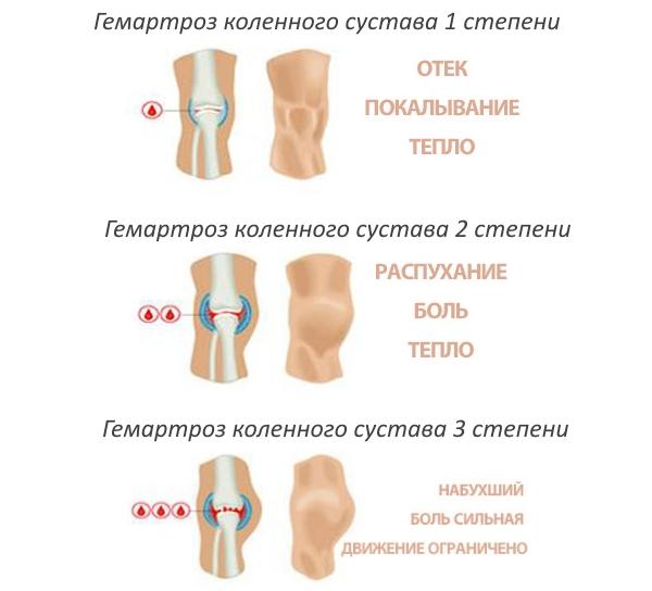 csípő tendinosis betegség ízületi gyulladás miért és hogyan kell kezelni