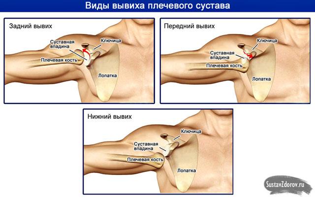 fájdalom a csípőben. az ízület
