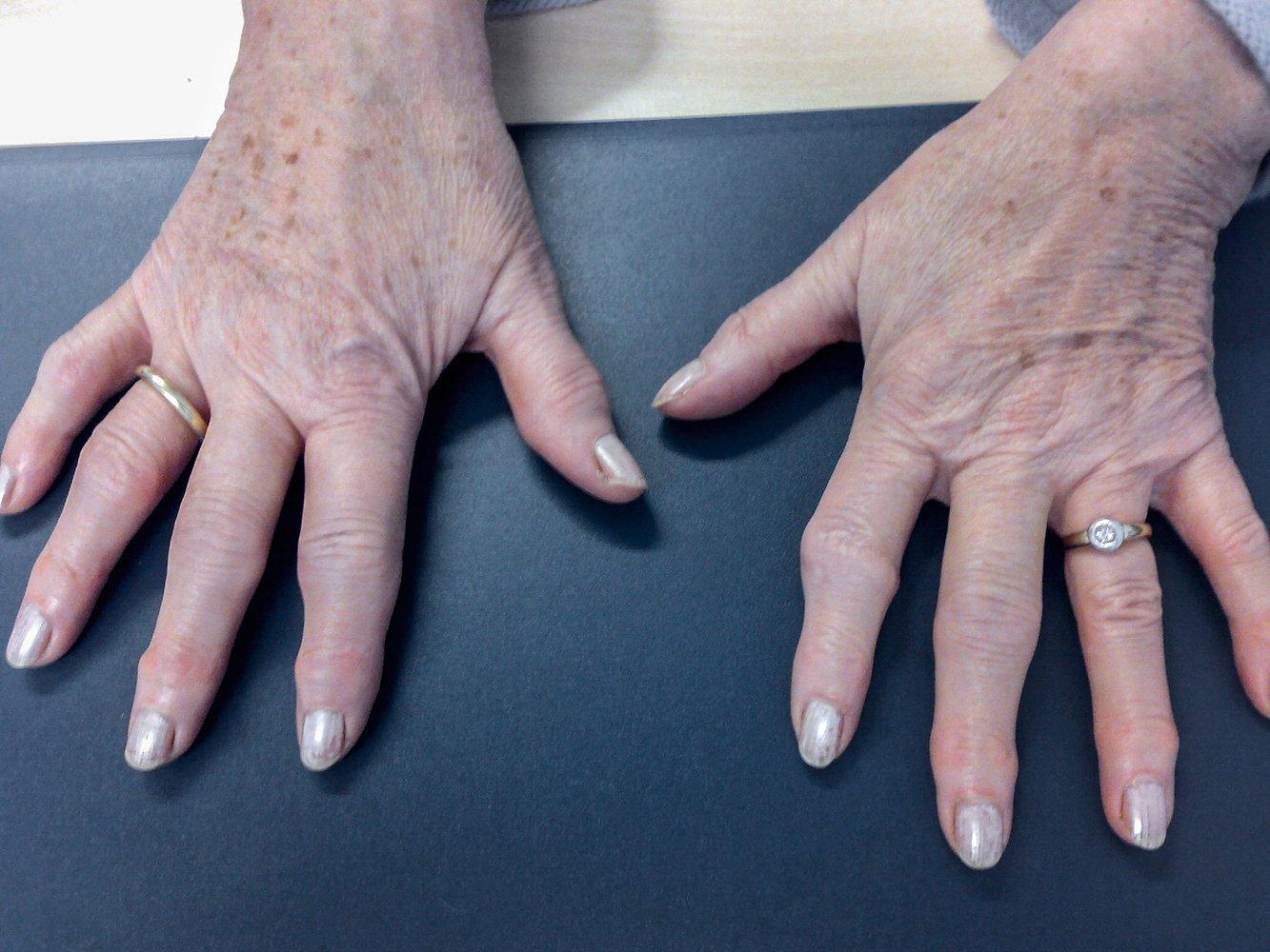 Az osteoarthritis arthritis kezelésével ellentétben - Van holden csípőfájdalma