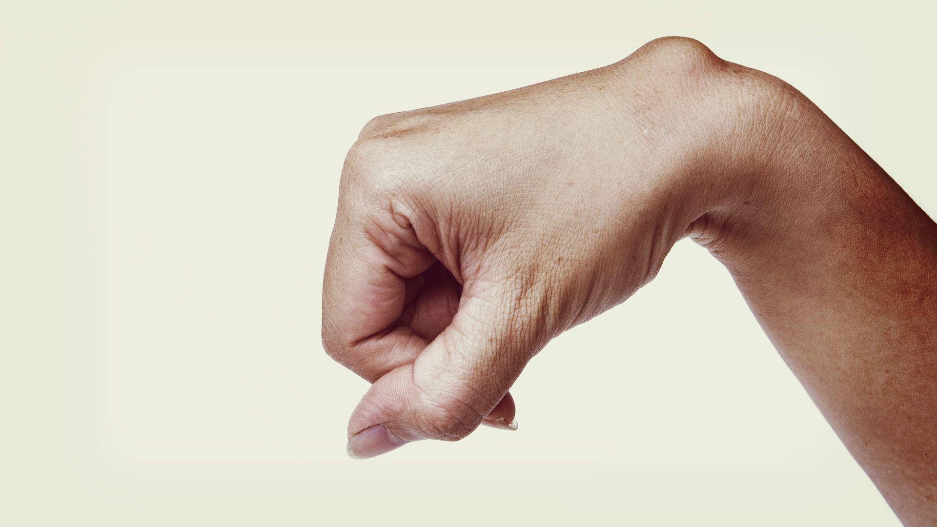 csontritkulás és artrózis kezelése