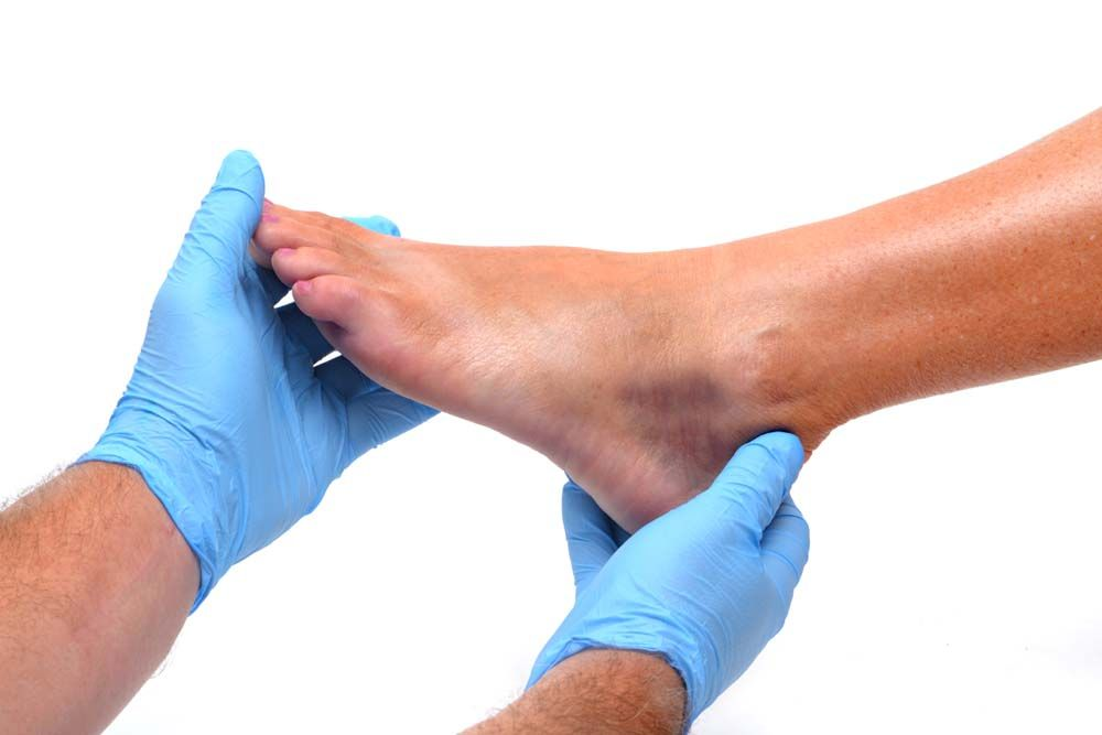bokaízület sport sérülései
