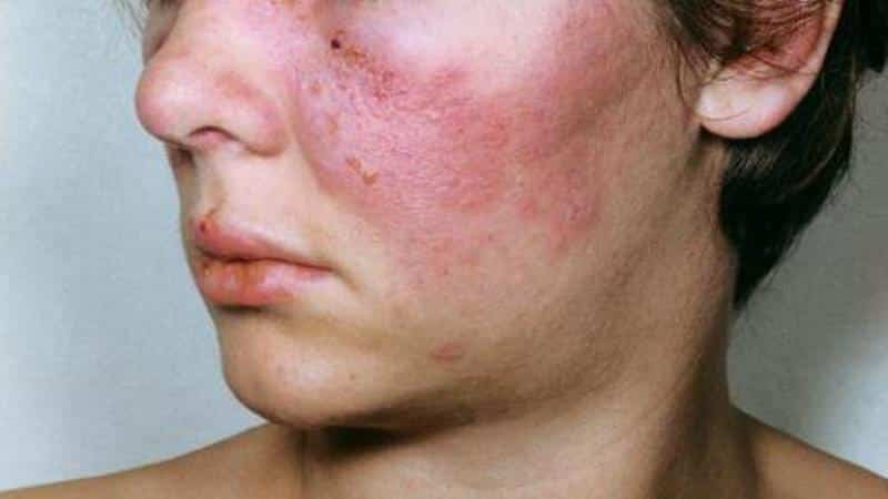 diffúz kötőszöveti betegség klinikai ajánlások