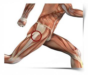 fájdalom és fájdalom a csípőízületben