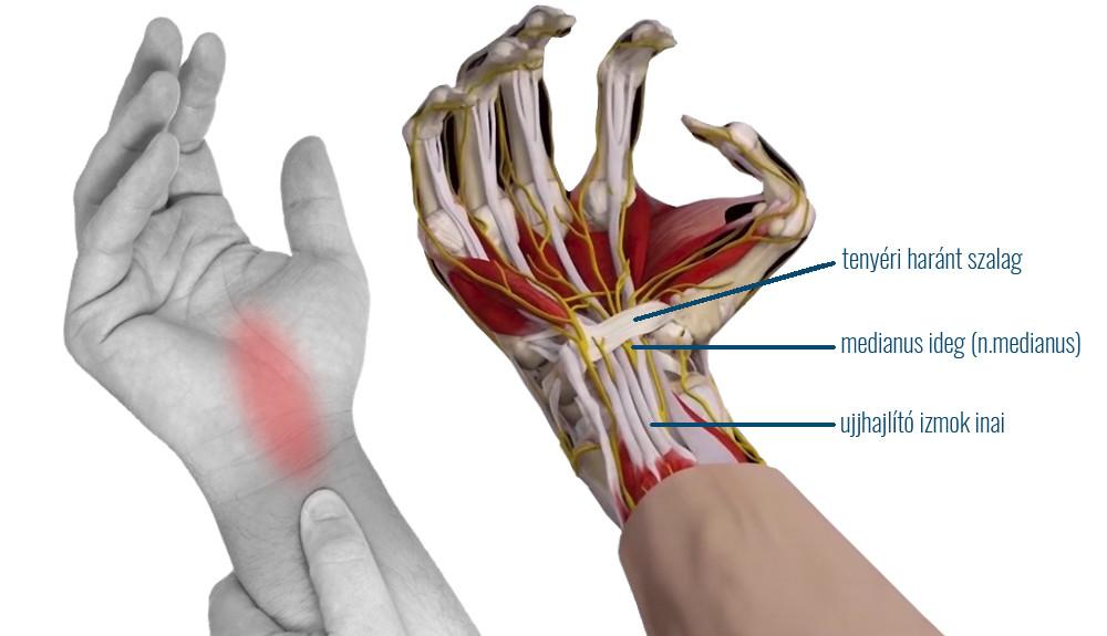 jobb csukló fájdalom uv közös kezelésre