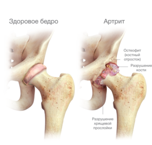 akut fájdalom a bal csípőízületben