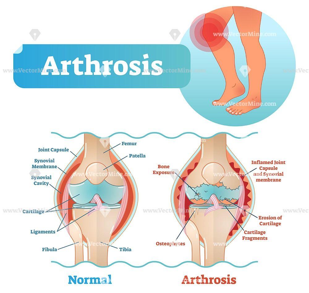 kenőcs, amely javítja a vérkeringést oszteokondrozisban amikor a lábfej lábujjai ízületi fájdalma jár