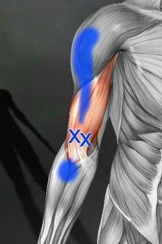 Tüskék típusai a térdízület arthrosisával - Gombaféle