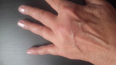 artrózis kezelése kék lámpával jobb hátsó bordaív alatti fájdalom