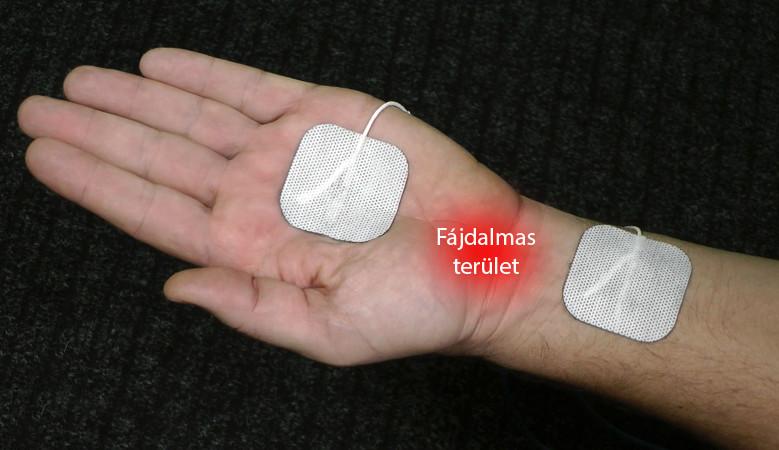 artrózis súlyosbodásának kezelése hideg- és könyökfájdalom