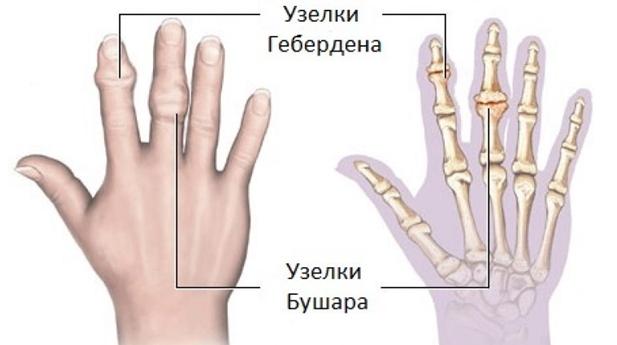 hialuronsav artrózis kezelés