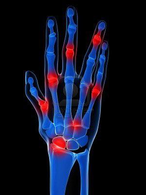 az ujjak és a vállak ízületeinek ízületi gyulladása chondoprotektív készítmények térdízületekre ár