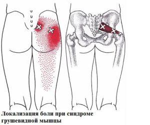 fájdalom a comb ízületeiben és az ágyékban