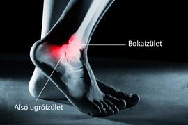 súlyosan fáj a láb bokaízülete